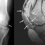 Xray and MRI of tuberculosis of knee joint. Multiple foci are shown with arrows.