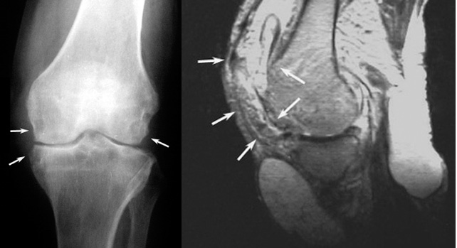 Tuberculosis of knee joint diagnosis and treatment bone and spine xray and mri of tuberculosis of knee joint multiple foci are shown with arrows ccuart Images