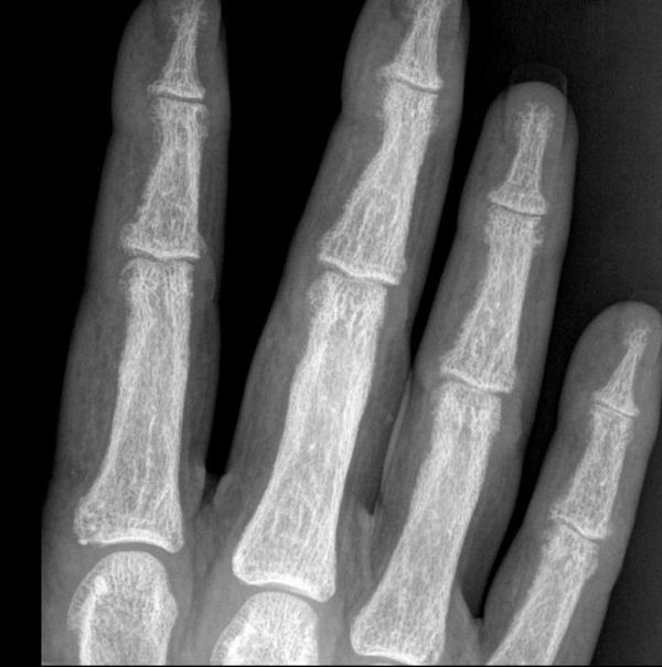Subperiosteal bone resorption and tuft . Not the radial side concavity on distal phalanges showing subperiosteal resorption. Noted in cae of primary hyperparathyroidism