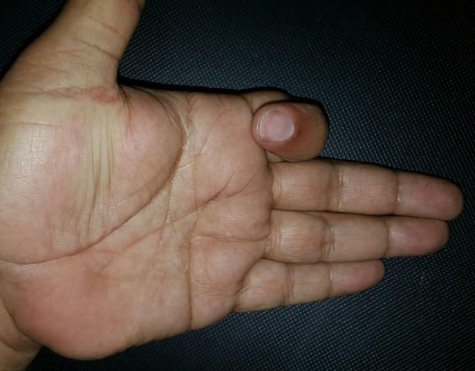normal-finger-flexion