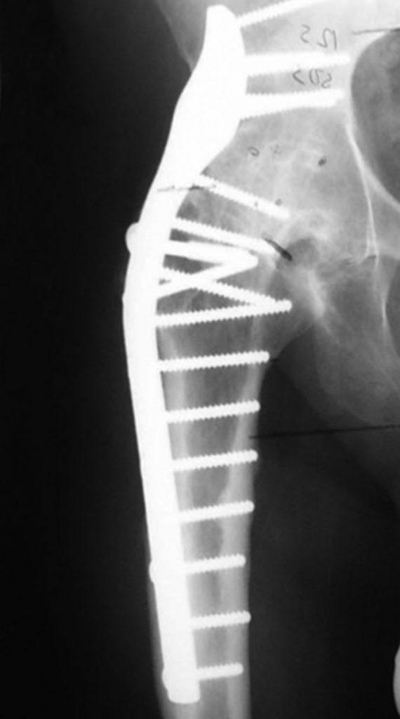 Hip arthrodesis image