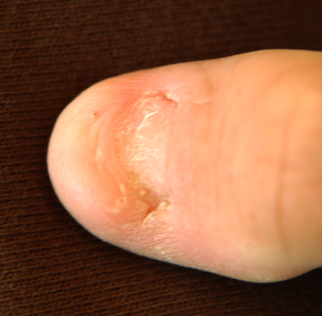 Dystrophic nail in nail patella syndrome