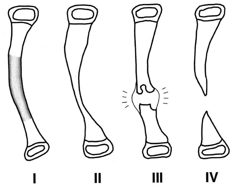 crawford classification of pseudarthrosis of tibia. Image credit: JBJS