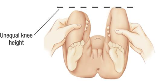 Glaeazzi sign showing different knee levels