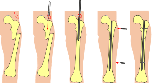 Illustration showing intramedullary nailing in femur