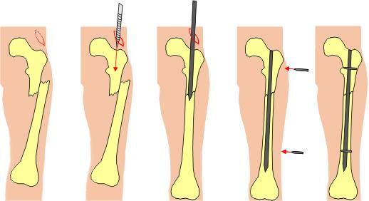 Illustration showing intramedullary nailing in femur
