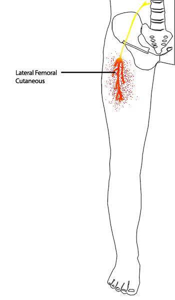 Distribution of Meralgia Paresthetica