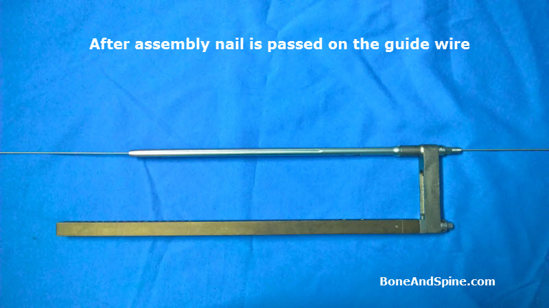 Nail over guide wire