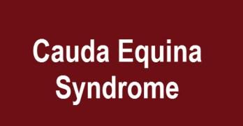 Cauda Equina Syndrome