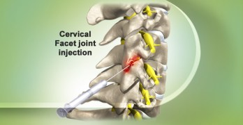 Facet Joint Injection- Indications and Complications