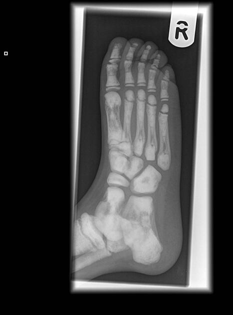 Adult osteopetrosis - foot x-ray showing endobones