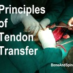 Tendon Transfer Principles