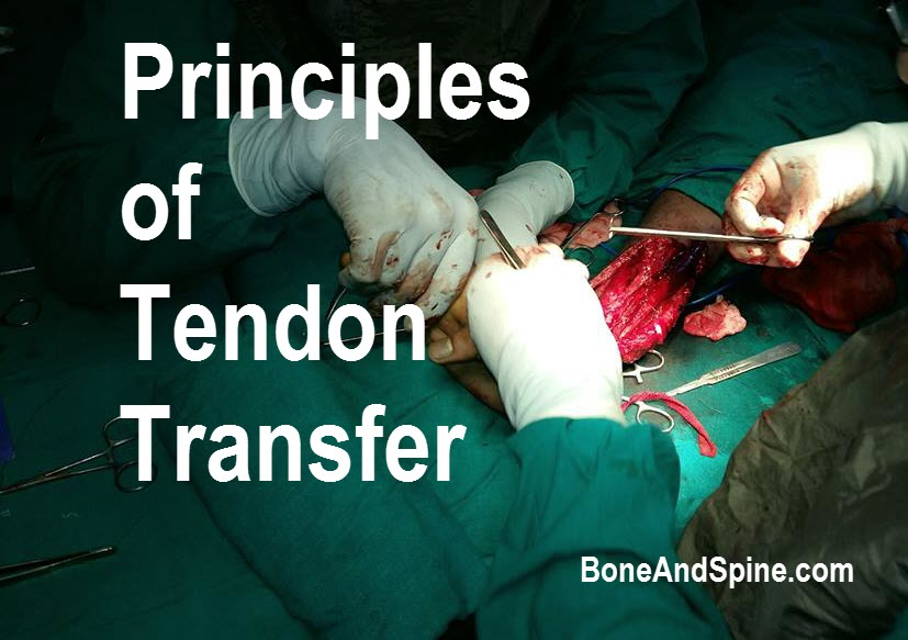 Principles of tendon transfer