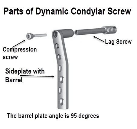 Dynamic Condylar Screw