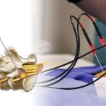 Radiofrequency Neurotomy – Indications and Procedure