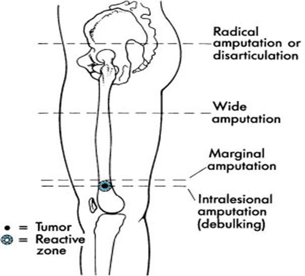Margins of Tumors in Amputation