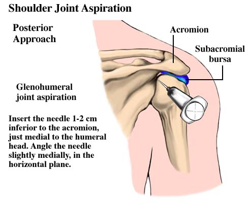 Posterior approach for shoulder arthrocentesis