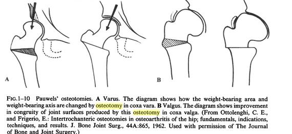 pauwel proximal femoral osteotomy