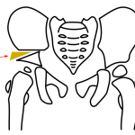 Pelvic osteotomies – Indications and Types
