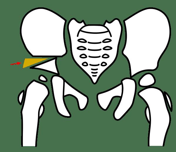 salter-osteotomy