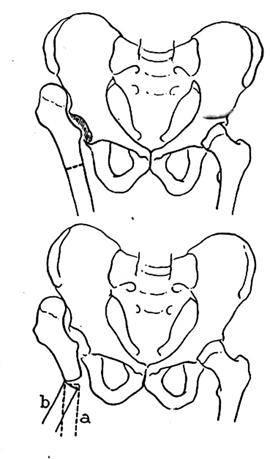 Shanz proximal femoral osteotomy