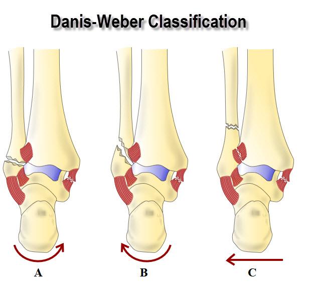 Malleolar Fractures Of Ankle Bimalleolar Fractures Trimalleolar