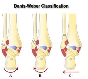 Danis Weber Classification of Malleolar Fractures