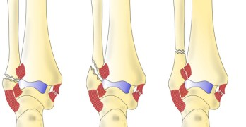 Malleolar Fractures of Ankle- Bimalleolar Fractures, Trimalleolar Fractures and Other Injuries