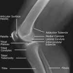Normal Knee X-rays