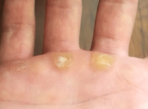 Calluses in hand