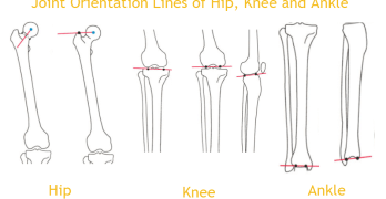 Normal Alignment of Lower Limb – Axes, Joint Orientation and Angles