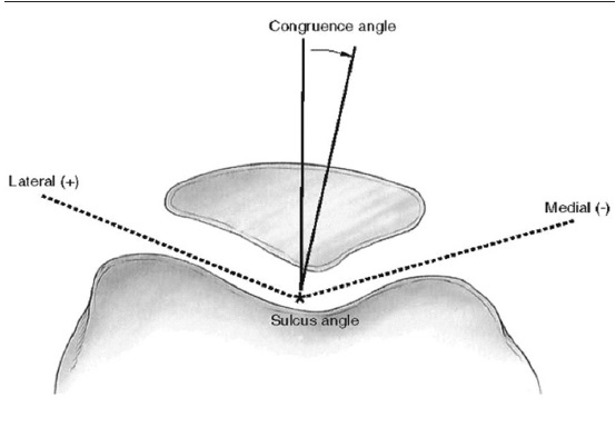 Sulcus angle