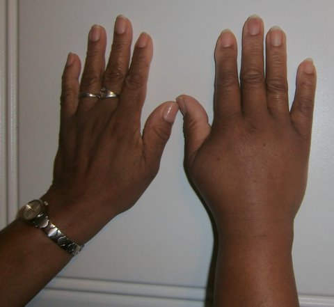 Comparative view of Palindromic Rheumatism as compared to normal