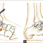 End to end repair in chronic ankle instability
