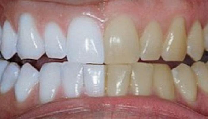 Izbeljivanje zuba limunom
