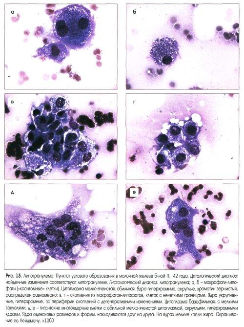 Цитологическое исследование выделений из молочной железы