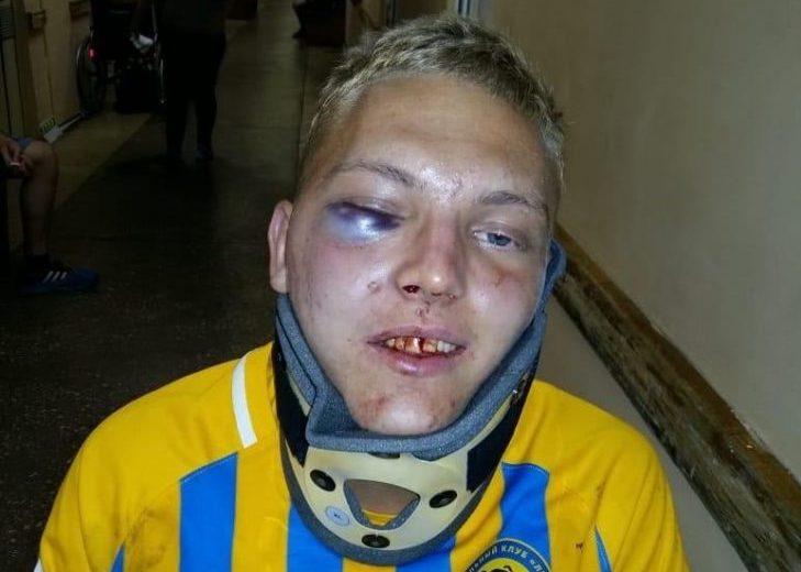 Спортивный директор «Луча» - о переломе челюсти Калугиным: «У нас футболисты на вес золота»