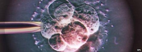 embryo,_light_micrograph-spl