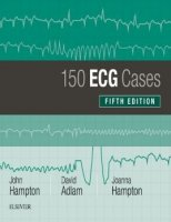 150 ECG Cases 5th edition PDF