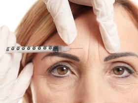 Botox Over 50
