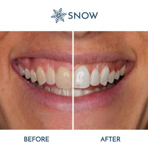 Snow Teeth Whitening Before And After 10 Great Last-Minute Gifts For Baby Boomers