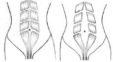 Picture, Diastasis Recti (Normal & Gap)