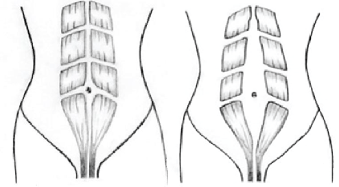 Picture, Diastasis Recti (Normal & Gap)