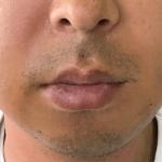 親知らずの抜歯〜腫れ〜回復。時系列フォトギャラリー