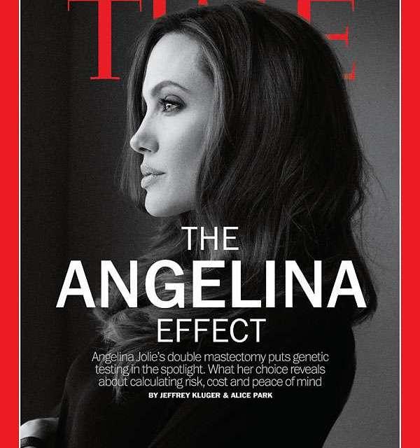 El efecto Angelina: de tanto miedo a moririse se amputa órganos por las dudas