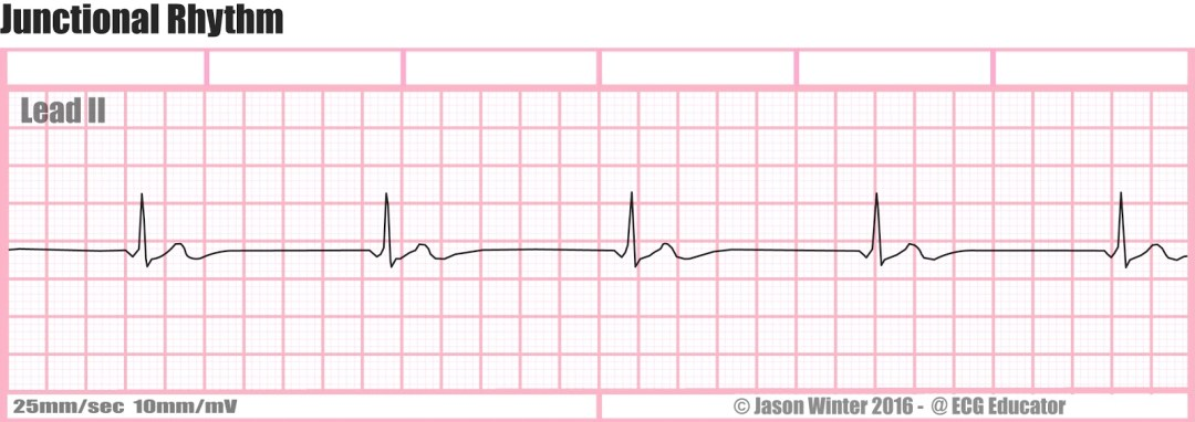 16) Junctional Rhythm STRIP-2