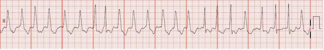 Atrial fib with RVR and wide QRS