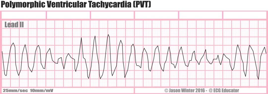 V-Tach Polymorphic