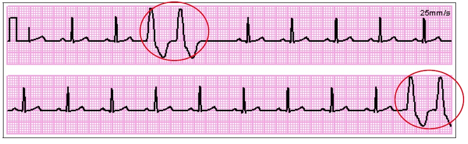 Premature Ventricular Contraction (PVC) couplet
