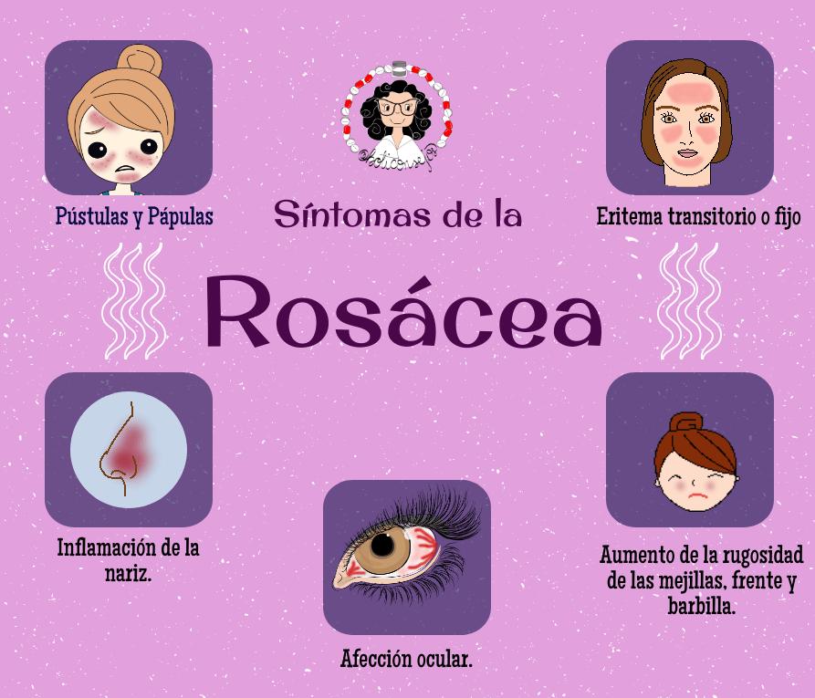 síntomas rosácea